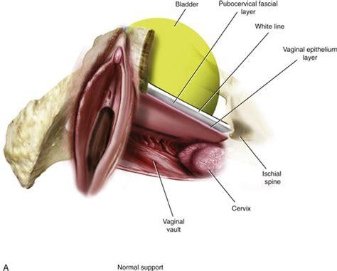 Vaginal wall an overview sciencedirect topics jpg 560x451